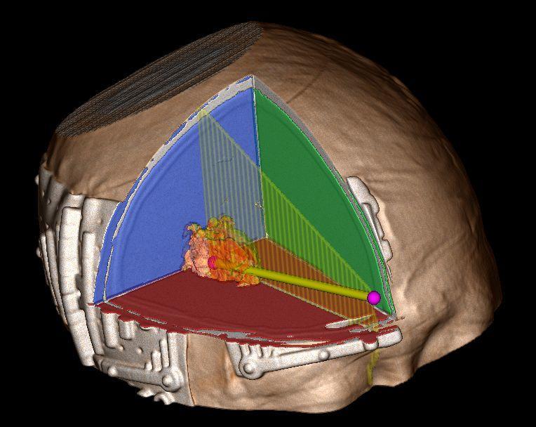 脑出血定位贴定位零基础之穿刺角度
