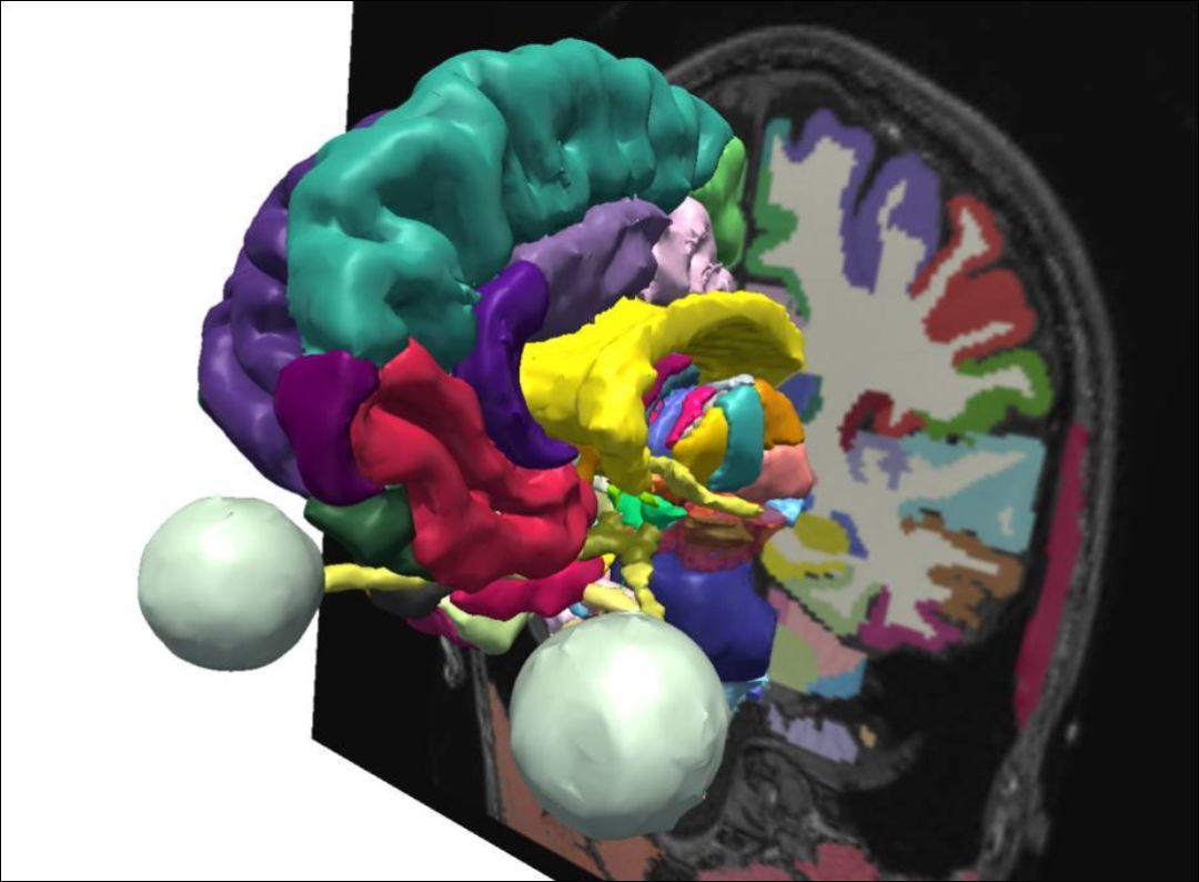 绝对值得推荐的3D颅脑解剖